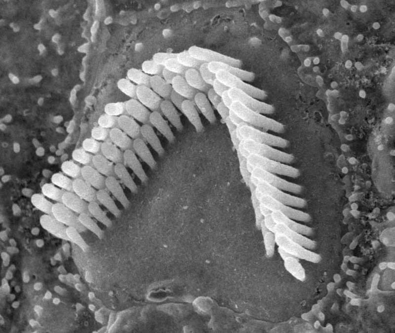 Hair cells in the inner ear convert sound information into electrical signals that enable the brain to hear the