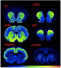 utoradiographic binding of D1, D2/D3, GABAA and mu-opoid receptors and the dopamine and serotonin transporters in the striatum of impulsive rats