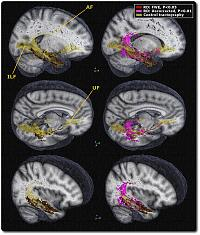 White matter tract abnormalities in semantic dementia patients projected onto a skeletonised mean control tractography highlights (i) the involvement of the arcuate and uncinate bundles, and (ii) the sparing of tracts running caudally from the temporal lobe through the ILF. [AF = Arcuate fasciculus; UF = Uncinate fasciculus; ILF = Inferior longitudinal fasciculus].