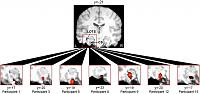 Activations on individual subjects showing increased activation for cross-modal compared to unimodal stimuli in perirhinal cortex.