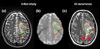 Diffusion tensor imaging can identify tumour invasion of normal brain in regions that appear normal on conventional imaging. Follow up imaging shows these abnormalities can predict the pattern of progression.