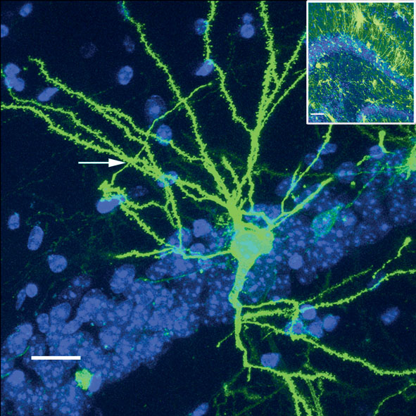 Dr John O U0026 39 Brien Cbiol Fsb    Cambridge Neuroscience