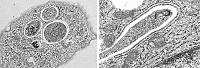 Autophagosomes visualised by electron microscopy (image provided by Dr Chieko Kishi-Itakura)