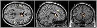Resting state hyperconnectivity from vmPFC to caudate in patients with OCD