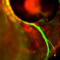 Mis-routing of Xenopus trigeminal axons (green) after treatment with an anitsense semaphorin oligonucleotide (red).