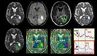 Combination of MR imaging methods to analyse different biological features found within the overlapping tumour regions.  This is a brief example of intra-tumour heterogeneity in glioblastoma.