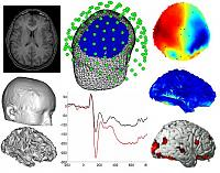 Multimodal Imaging: MRI, MEG, EEG, fMRI