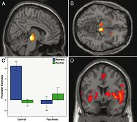Differences between psychosis patients and controls in the relationship between reward prediction error and brain response in midbrain and ventral striatum (A and B), and in a wider network including the insula, cingulate and striatum (C). (D) shows midbrain parameter estimates