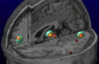 Regions involved in discriminating perceived from imagined stimuli overlap with areas dysfunctional in schizophrenia