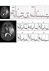magnetic resonance spectra from an astrocytoma